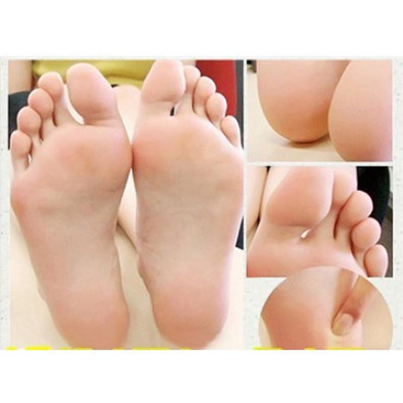 baby foot hård hud
